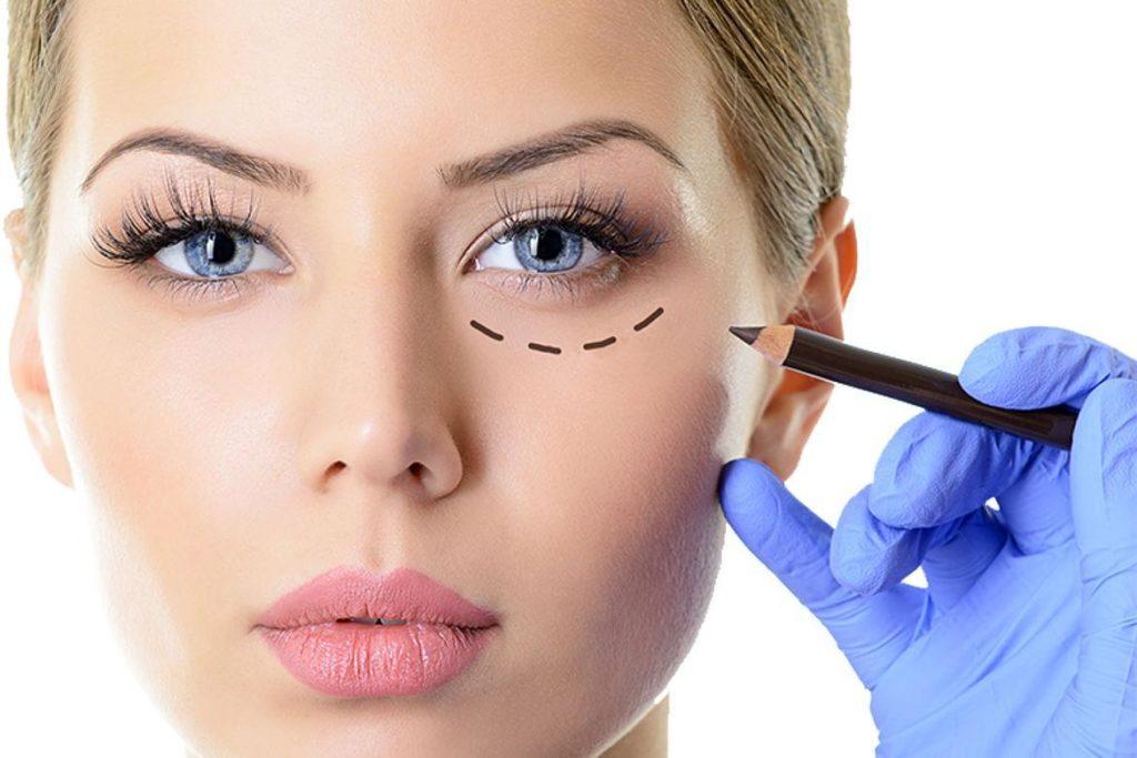 Chirurgia estetica, dopo i 40 anni le donne non rinunciano al ritocchino